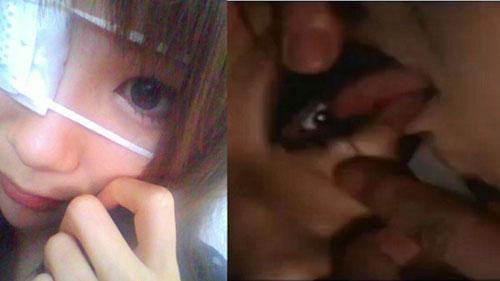 日本少年流行舔眼珠 无节操亲密方式致结膜炎(图)